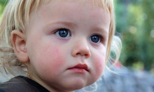 Алергічний діатез у дітей: лікування