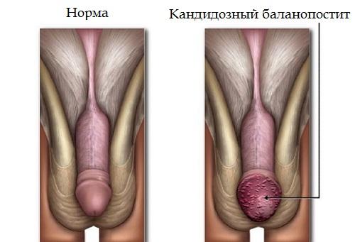 Баланопостит у мужчин: лечение в домашних условиях