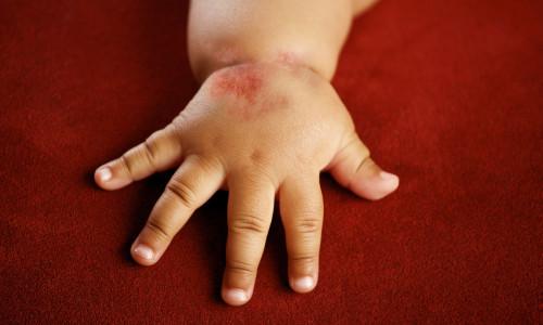Чим у дитини відрізняється діатез від алергії?