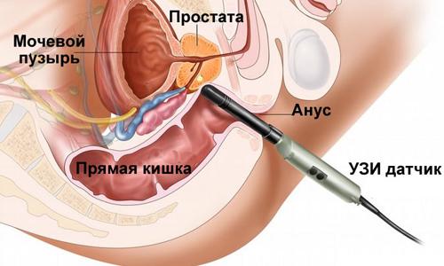 Дослідження органів малого тазу або трансректальне УЗД