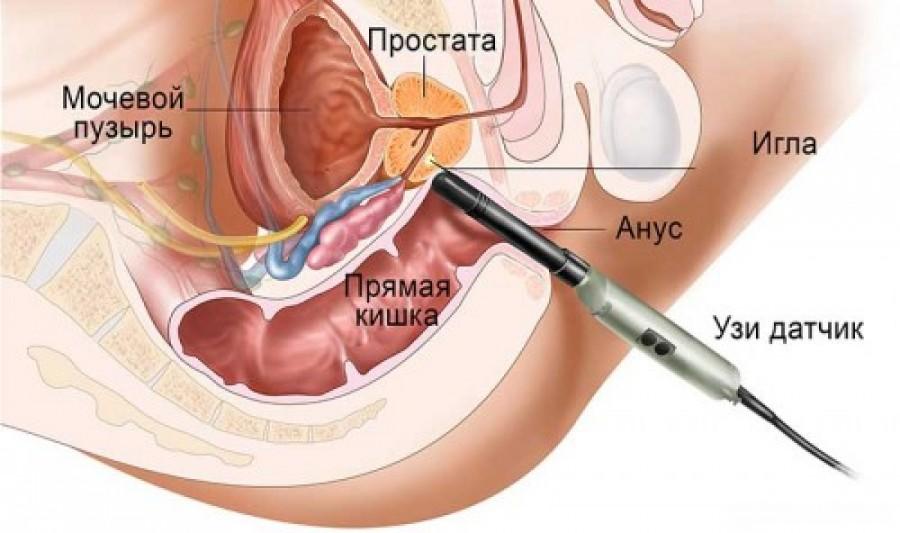 Як проводиться біопсія передміхурової залози (простати)