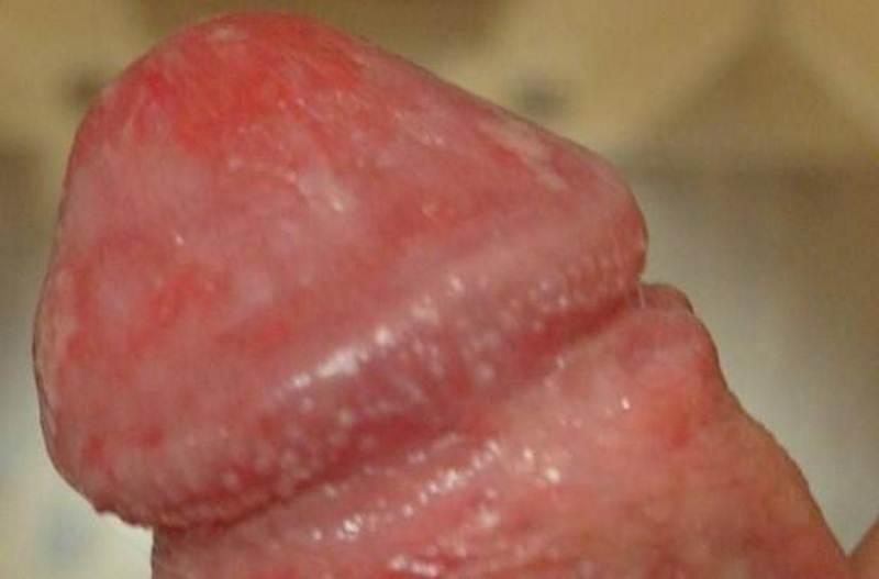 Как проявляются признаки молочницы у мужчин — фото