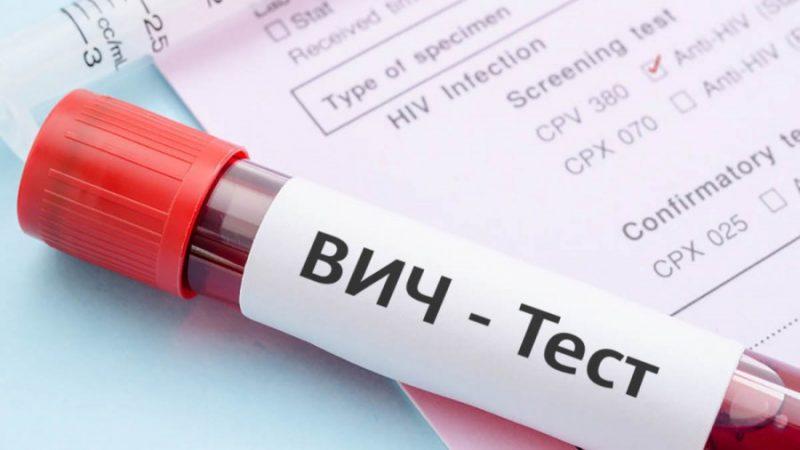 Як виявити симптоми ВІЛ (Снід) у чоловіків на ранніх стадіях — перші ознаки хвороби