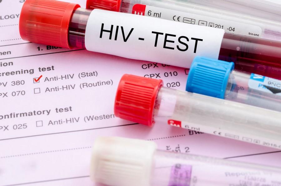 Перші ознаки та симптоми ВІЛ у чоловіків на ранніх стадіях