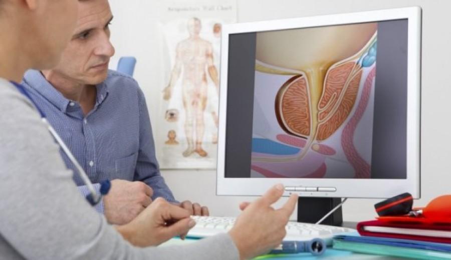 Перші симптоми раку простати у чоловіків — ознаки хвороби