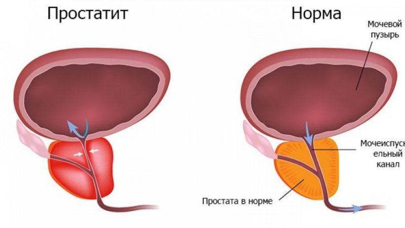 Найефективніші препарати при лікуванні простатиту