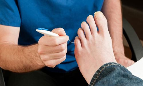 Діабетична стопа: головні симптоми і лікування