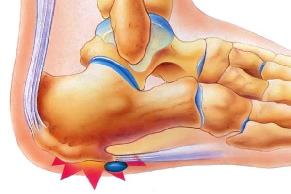 Ефективне лікування екзостозів п'яткової кістки