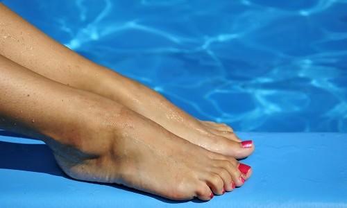 Ефективне лікування при вальгусной деформації великого пальця стопи
