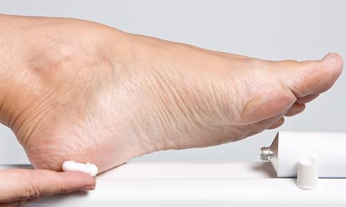 Як можна швидко позбутися натоптишів на ногах