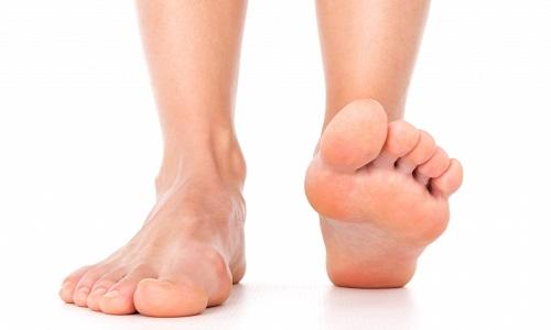 Як проводять лікування артриту стопи ніг в домашніх умовах