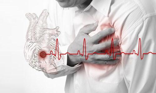 Які препарати призначаються для лікування після інфаркту міокарда?
