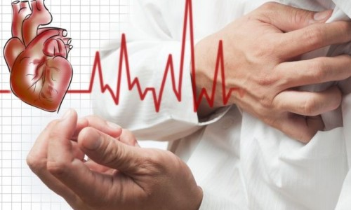 Які симптоми стенокардії
