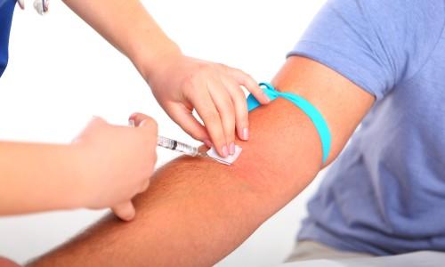 Коли показана здача крові на ХГЛ: до затримки і після