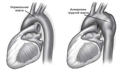 Лікування народними методами аневризми аорти