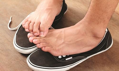 Основні причини і лікування свербежу стопи