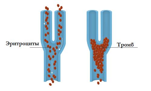 Особливості тромбозу легеневої артерії