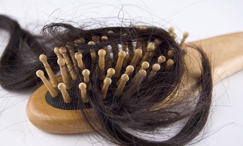 Чому випадають волосся після пологів і як з цим боротися