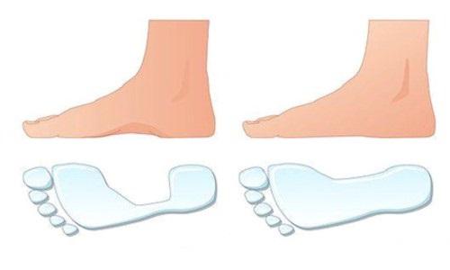 Правильне лікування плоскостопості у дорослих в домашніх умовах