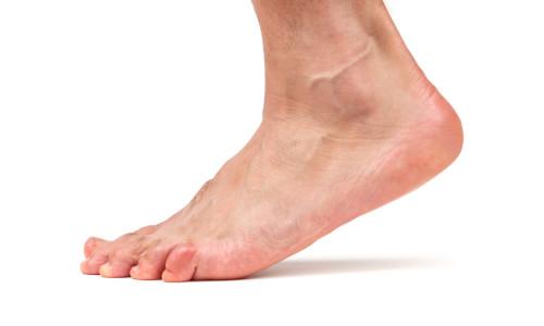 Розтягнення або вивих стопи: лікування в домашніх умовах