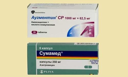 Що вибрати: Аугментин або Сумамед?