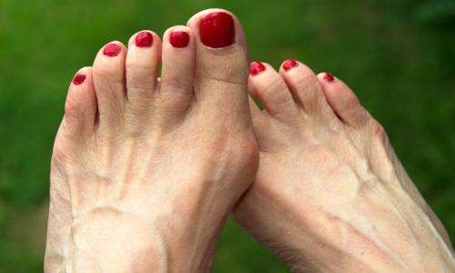 Шишки на пальцях ніг: причини виникнення і лікування
