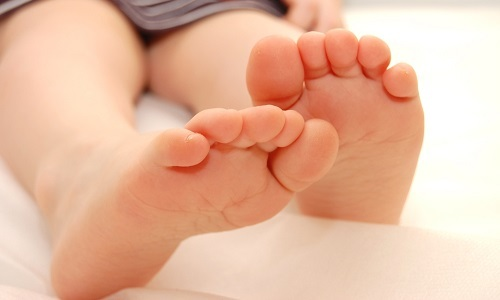 Симптоми та лікування подовжньо-поперечної плоскостопості