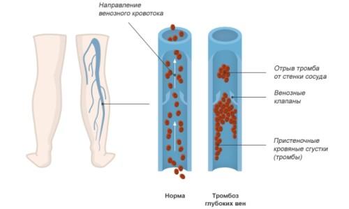 Симптоми і лікування тромбозу глибоких вен нижніх кінцівок