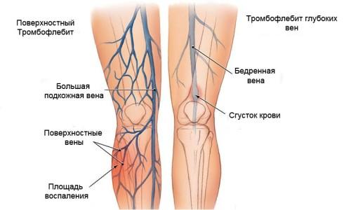 Захворювання тромбоз вен нижніх кінцівок і його симптоми